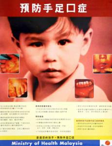 HFMD:Penyakit Tangan, kaki dan Mulut (B. Cina)
