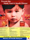 HFMD:Penyakit Tangan, kaki dan Mulut (B. Inggeris)