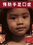 HFMD:Penyakit Tangan, kaki dan Mulut (BC)