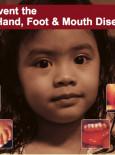 HFMD : Penyakit Tangan, Kaki dan Mulut (BI)