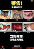 Merokok:Amaran Merokok Bergambar (B.Cina)