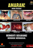 Merokok:Amaran Merokok Bergambar (B.Malaysia)