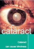 Cataract (B.Inggeris)
