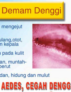 Denggi:Slaid TV Denggi 03 (BM)