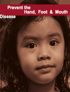 HFMD:Cegah Penyakit Tangan, Kaki dan Mulut (BI)