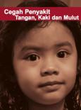 HFMD:Cegah Penyakit Tangan, Kaki dan Mulut (BM)
