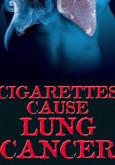 Rokok Mengakibatkan Kanser Paru-paru (Bahasa Inggeris)