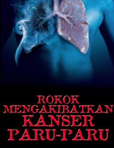 Rokok Mengakibatkan Kanser Paru-paru