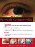 Conjuntivitis : Cara Pencegahan