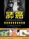 Paru-paru:Kanser Paru-paru (B.Cina)