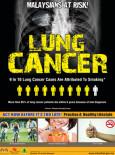 Paru-paru:Kanser Paru-paru (B.Inggeris)