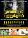 Paru-paru:Kanser Paru-paru (B.Tamil)