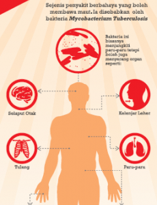TIBI:Cegah Penyakit Tibi 01