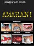 Tembakau:Pameran Hari Tanpa Tembakau 2009 (6)