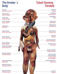 Merokok:Tubuh Seorang Perokok (B. Malaysia)