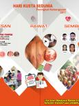 Kusta:Majlis Sambutan Hari Kusta Sedunia Pop-Up