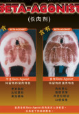 Beta-Agonist (B. Cina)