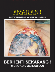 Tembakau:Pameran Hari Tanpa Tembakau 2009 (14)