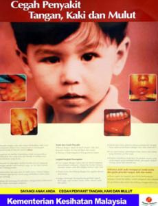 HFMD:Penyakit Tangan, kaki dan Mulut (B. Malaysia)