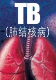 Tibi (B.Cina)