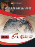 Merokok Penyebab Kanser Paru-paru (B. Cina)