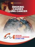 Merokok Penyebab Kanser Paru-paru (B. Inggeris)