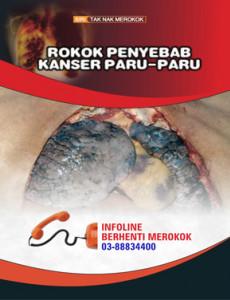 Merokok Penyebab Kanser Paru-paru (B. Malaysia)