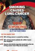 Merokok penyebab kanser paru-paru (BI)