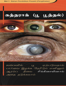 Katarak (Bahasa Tamil)