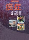 Kanser Awal Dijejak (Bahasa Cina)