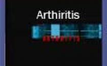 Arthiritis (B. Melayu)