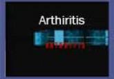Arthiritis (B. Inggeris)