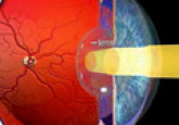 Diabetis: Causes and Prevention of Diabetic Retinopathy