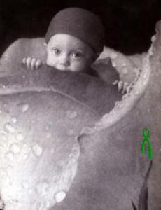 Derma Organ: Gift of Life