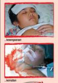 Denggi:Roll-up Denggi 4
