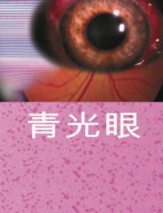 Glaukoma (B.Cina)