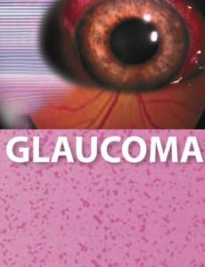 Glaukoma (B.Inggeris)