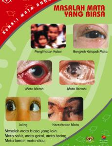 Mata:Pameran Kenali Mata Anda 4