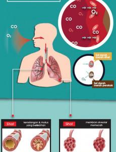 Tembakau:Hari Tanpa Tembakau 2014 (2)